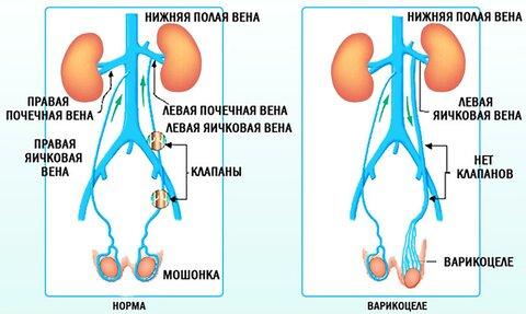 варикоцеле медпросвет 2.jpg