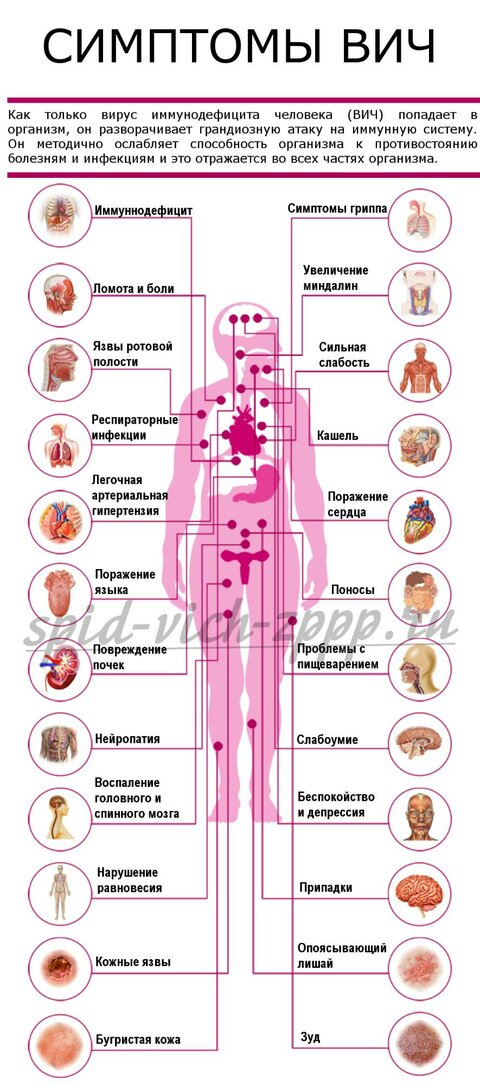 simptomi-vich-spida.png