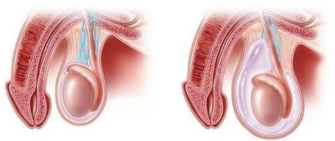 гидроцеле спб лечение.jpg