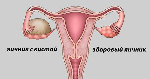 киста яичника 3.jpg