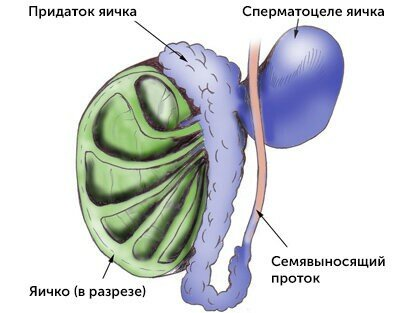 сперматоцеле спб лечение.jpg