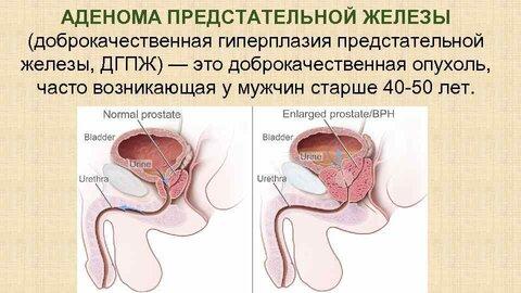 http://www.24farm.ru/images/bolezni/dobrokachestvennaya_giperplaziya_predstatelnoj_gelezi_214.jpg