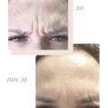 Ботокс в лоб