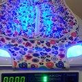 ОФТН-03 (фотолампа) для лечения желтушки новорожденных