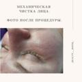 Чистка лица гигиеническая